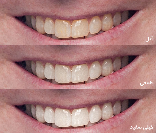 whitening-teeth-in-photoshop-06